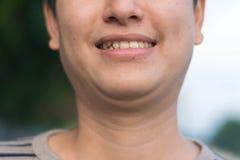 Mens die zijn tanden het glimlachen tonen royalty-vrije stock foto's