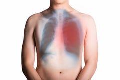 Mens en een röntgenstraal met long op witte achtergrond wordt geïsoleerd die Stock Afbeeldingen