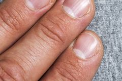 Mens fingers and nails in bad condition close up.  Stock Image