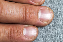 Mens fingers and nails in bad condition close up Royalty Free Stock Photography