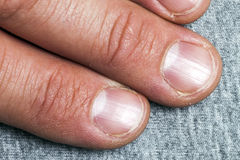 Mens fingers and nails in bad condition close up.  Stock Photography