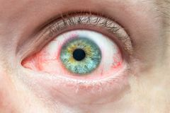 Mens irritated red eye close up, problems with blood vessels, fatigue chronic conjunctivitis royalty free stock photo