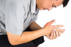 Mens met pijnlijke en ontstoken jicht op zijn hand rond het duimgebied Royalty-vrije Stock Foto's