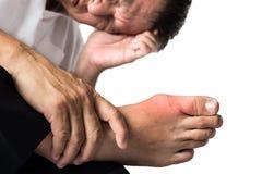 Mens met pijnlijke en ontstoken jicht op zijn voet, rond het grote teengebied Stock Afbeelding