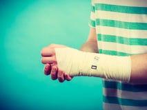 Mens met pijnlijke verbonden hand stock afbeeldingen