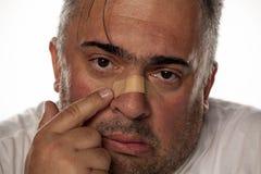 Mens met verwonde neus royalty-vrije stock fotografie