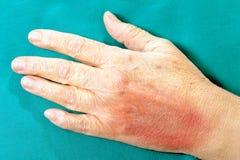 Menschliche Hand nach körperlicher Gewalttätigkeit Lizenzfreie Stockbilder