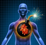 Menschliche Herzinfarkt-Zeitbombe Stockfotografie