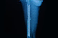 Menschliche Röntgenstrahlen, die Bruch des Schenkelbeinknochenbeitrags betrieben zeigen Lizenzfreies Stockbild