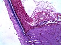 Menschliche Retina und Teil des blinden Flecks unter dem Mikroskop lizenzfreie stockfotografie