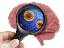 Menschlicher Brain Analyzed mit Vergrößerungsbakterieller Mikrobe des virus innerhalb lokalisiert lizenzfreie stockfotos