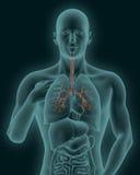 Menschlicher Körper mit der sichtbaren entflammten Trachea und Bronchien 3d übertragen Lizenzfreie Stockfotografie