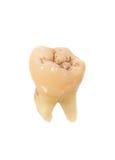 Menschlicher Zahn Stockfoto