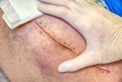 Menschliches Bein mit postoperativer Narbe der gemeinsamen Chirurgie Detail der Haut Lizenzfreies Stockfoto