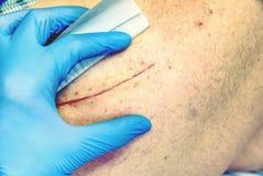 Menschliches Bein mit postoperativer Narbe der gemeinsamen Chirurgie Detail der Haut Stockfoto
