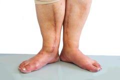 Menschliches Bein mit postoperativer Narbe der Herzchirurgie Lizenzfreie Stockfotos
