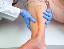 Menschliches Bein mit postoperativer Narbe der Herzchirurgie Stockbild