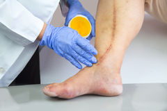 Menschliches Bein mit postoperativer Narbe der Herzchirurgie Lizenzfreie Stockbilder