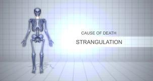Menschliches gerichtliches Autopsie-Animations-Konzept - Todesursache - Erdrosselung stock video