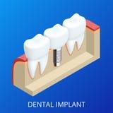 Menschliches Implantat des isometrischen Zahnes Zahnmedizinisches Konzept Menschliche Zähne oder Gebisse Abbildung 3D getrennt Re Lizenzfreie Stockfotografie