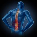 Menschliches medizinisches Rückenmarkskelett der rückseitigen Schmerz Lizenzfreie Stockbilder