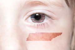 Menschliches ` s Gesicht mit Staatsflagge von Staaten von Amerika und Tennessee geben Karte an stockbild