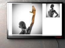 Menselijk het aftastenbeeld van de beenderenradiografie Stock Fotografie