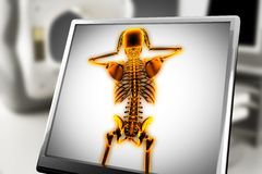 Menselijk het aftastenbeeld van de beenderenradiografie Royalty-vrije Stock Afbeeldingen