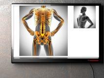 Menselijk het aftastenbeeld van de beenderenradiografie Royalty-vrije Stock Fotografie