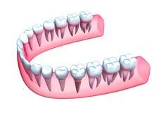 Menselijk kaakmodel met tanden en implant. Stock Afbeelding