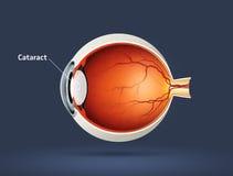 Menselijk oog - cataract Stock Afbeelding