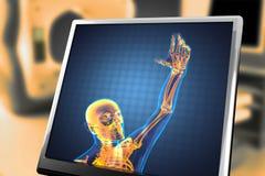 Menselijk radiografieaftasten Stock Foto