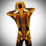 Menselijk radiografieaftasten met gloeiende beenderen Royalty-vrije Stock Fotografie
