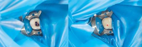 Menselijk tandenclose-up tijdens restauratie van het vullen Het concept stock foto