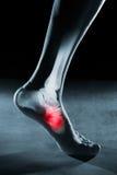 Menselijk voetenkel en been in röntgenstraal royalty-vrije stock afbeelding