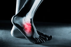 Menselijk voetenkel en been in röntgenstraal stock foto's