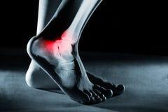 Menselijk voetenkel en been in röntgenstraal stock fotografie