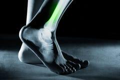 Menselijk voetenkel en been in röntgenstraal, op grijze achtergrond stock afbeeldingen