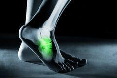 Menselijk voetenkel en been in röntgenstraal, op grijze achtergrond stock foto