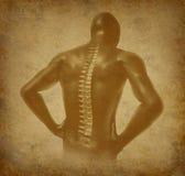 Menselijke achter oude grunge van de stekel ruggegraatspijn Stock Fotografie