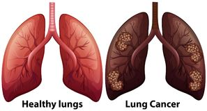 Menselijke Anatomie van Lung Condition vector illustratie
