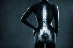 Menselijke backbone in röntgenstraal Stock Foto's