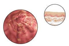 Menselijke esophagous, illustratie en lichte micrograaf stock illustratie