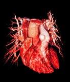 Menselijke hart en longschepen, CT 3D beeld, Royalty-vrije Stock Afbeeldingen