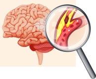 Menselijke Hersenen met Atherosclerose stock illustratie