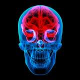 Menselijke hersenenröntgenstraal Royalty-vrije Stock Foto's