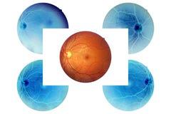Menselijke ooganatomie, retina, optische schijfslagader en ader enz. royalty-vrije stock afbeelding
