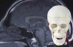 Menselijke schedel lodel op MRI-achtergrond royalty-vrije stock afbeeldingen