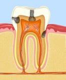 Menselijke tand Stock Afbeelding