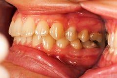 Menselijke tanden Stock Foto's
